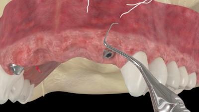 """Injerto de tejido conectivo en un implante mediante la técnica tipo """"sobre"""""""