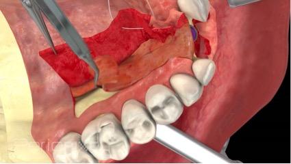 Injerto palatino pediculado de tejido conectivo sub-epitelial para el aumento del reborde alveolar