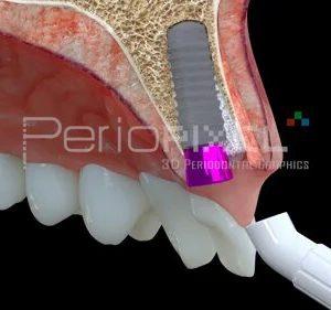 Implante inmediato mediante injerto de tejido conectivo