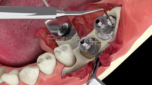 Periimplantitis: Tratamiento Quirúrgico Regenerativo
