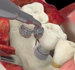 Periimplantitis: Resectivo implantoplastia