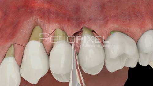 advanced flap dental recessions