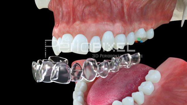 video3d ortodoncia invisible